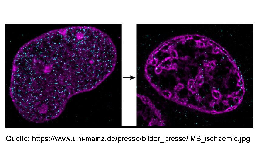 DNA-in-einem-Zellkern-unter-normalen-und-ischaemischen-Bedingungen
